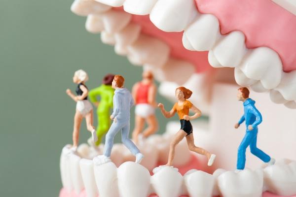 入れ歯の上を走る人たち